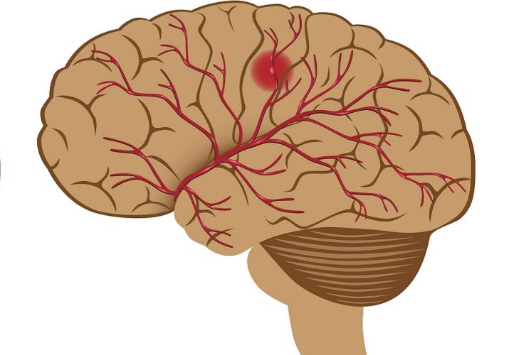 Kjøtt kan øke risiko for hjerneslag