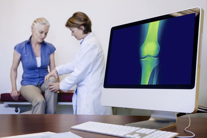 Fiberrikt kosthold reduserer risiko for artrose (leddgikt)