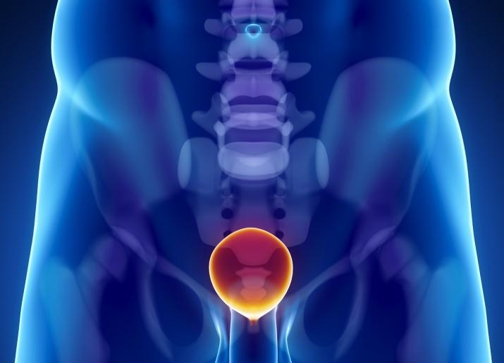 melk kreft i prostata